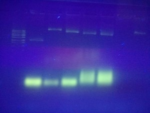 1% Agarosegel auf UV-Licht